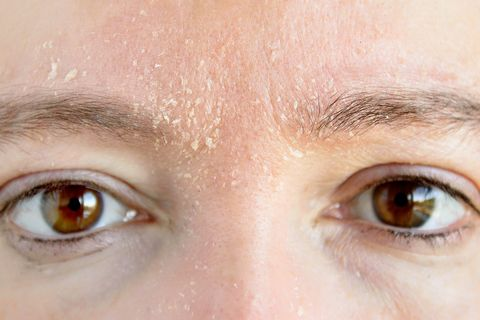 Dry and flaky skin type