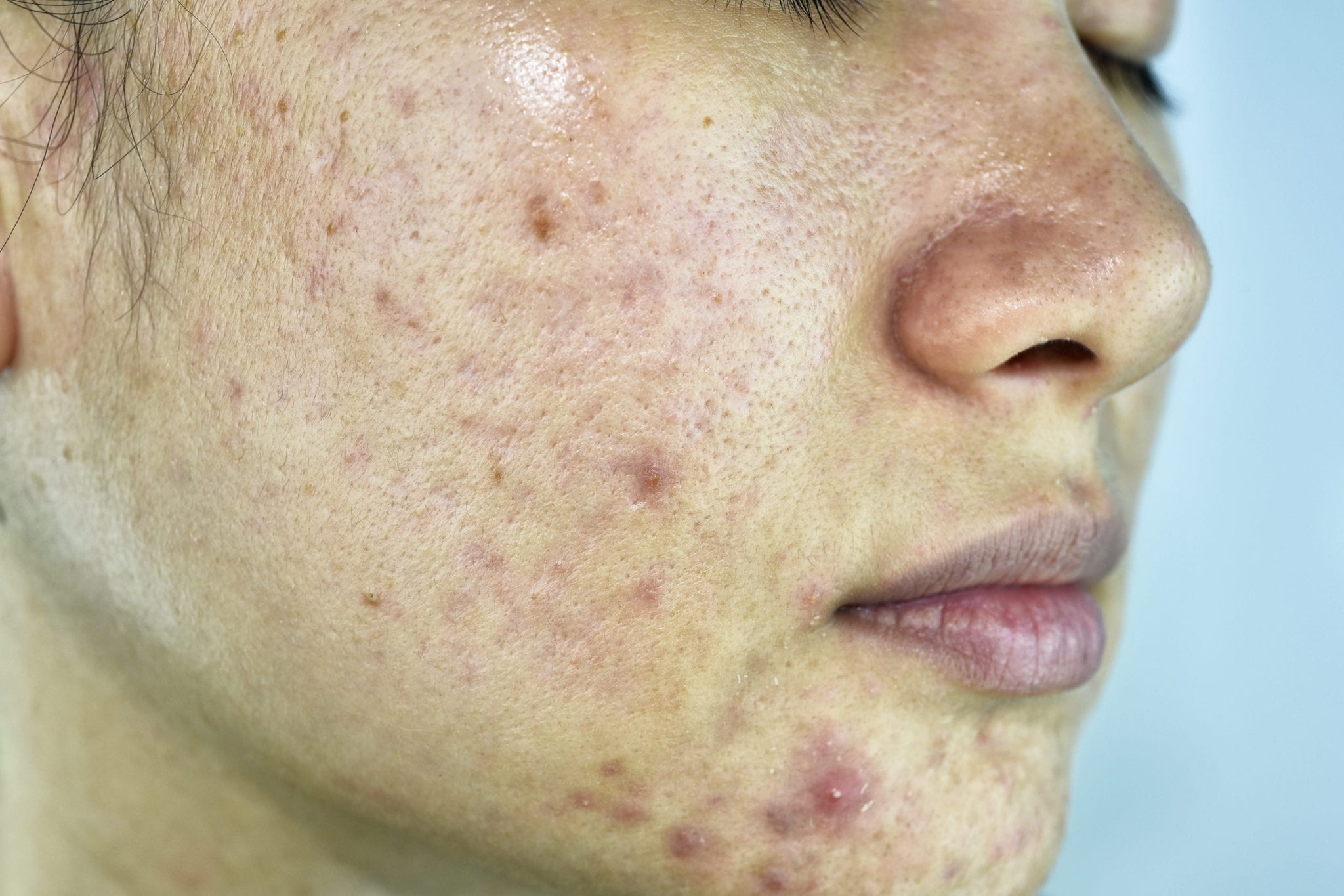 Oily skin type with acne