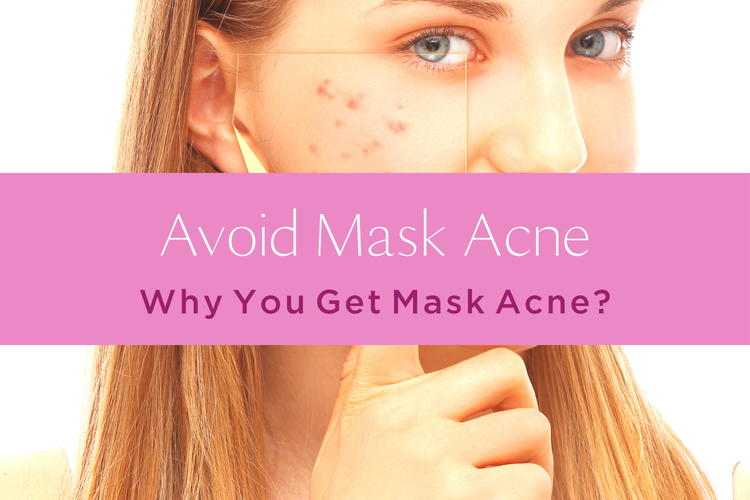Avoid Mask Acne | 4 Reasons You Get Acne While Wearing A Mask