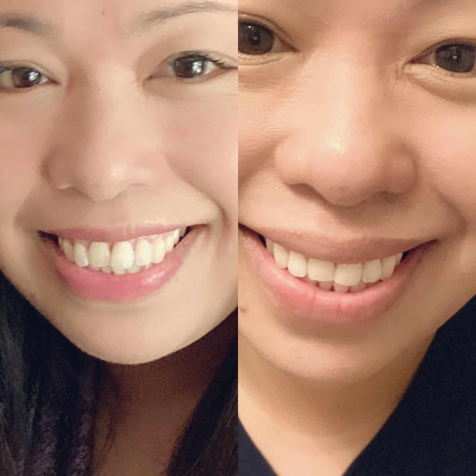 teeth align