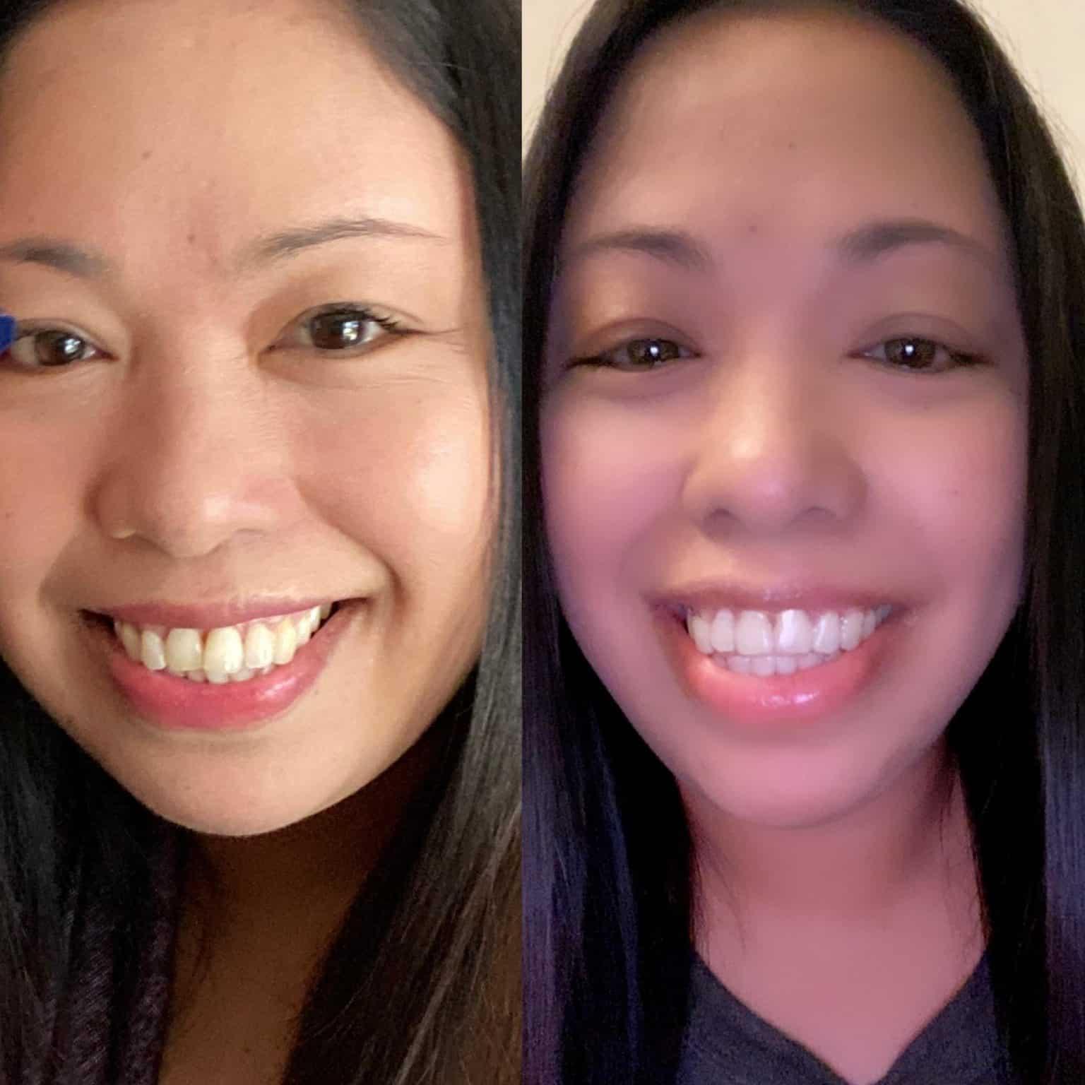 Boosting self-confidence-teeth align