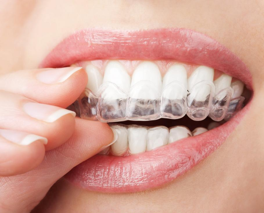 teeth-with-whitening-tray byte