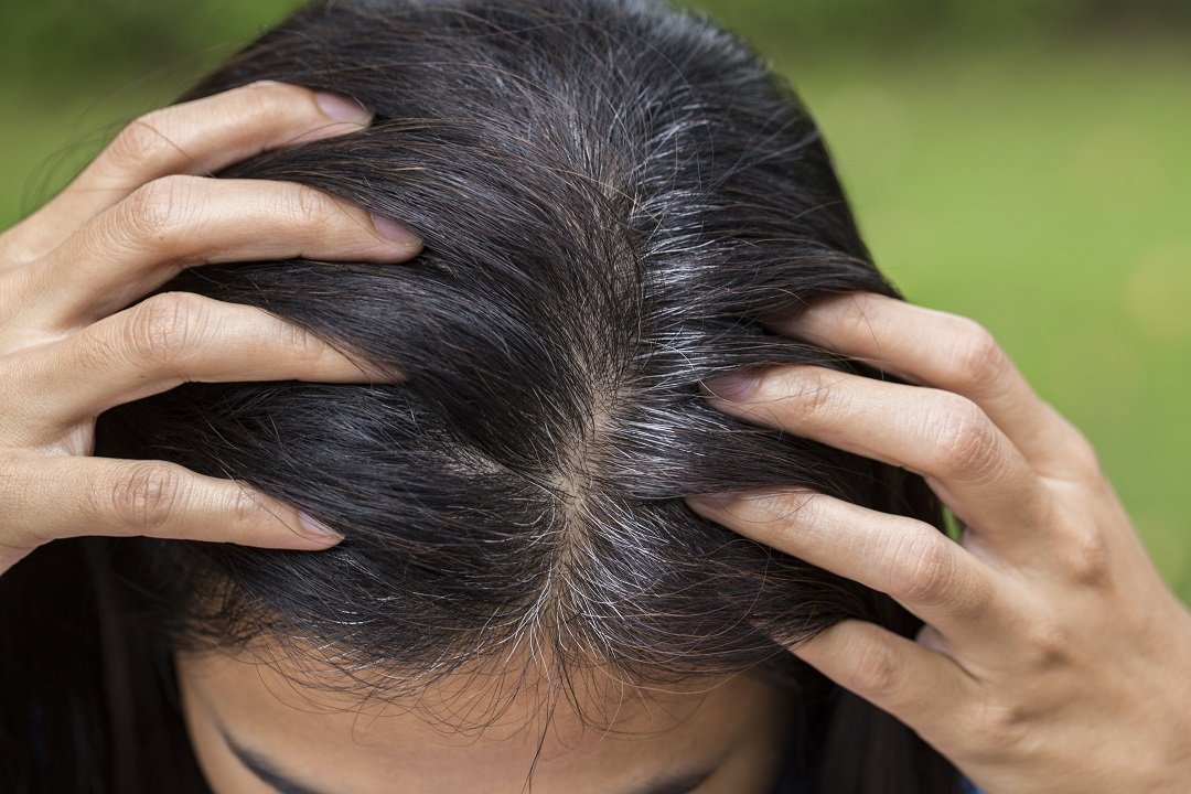 Shows appearance of gray hairs