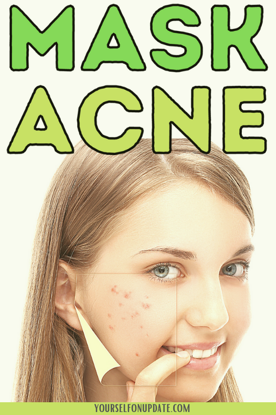 why-you-get-mask-acne